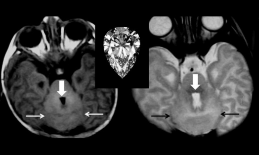 "Axial T2-weighted MRI at the level of the posterior fossa showing antero-posterior elongation of the fourth ventricle giving it a ""diamond shaped"" appearance (arrows)."