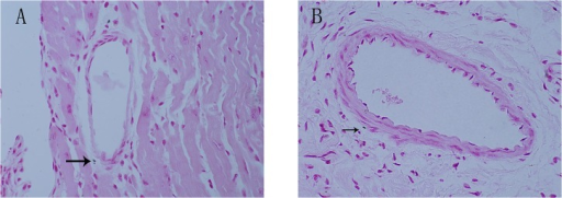 Calcification in the 56-week-old ApoE-/-mice coronary artery.Von Kossa staining showing calcification in the 56-week-old ApoE-/-mice coronary artery, adventitia, and intima. Magnification *600 (Fig 2A.2B). Arrows indicate calcification in adventitia.