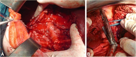 Intraoperative findings in blunt liver trauma. Road traffic accident was the cause of trauma in 40 year old driver with AAST grade V blunt liver injury (a). Right hepatectomy: transection of right Glissonean pedicle using endo-GIA vascular stapling device (b)
