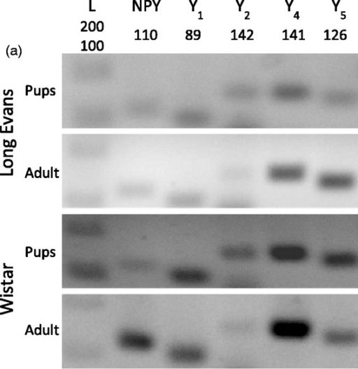 Expression of NPY and NPY receptors in RGCs. (a) Detection of NPY and NPY receptors (Y1, Y2, Y4, and Y5) mRNA expression by RT-PCR in purified RGCs. RGCs were isolated from the retinas of either pups or young adult Long Evans and Wistar rats. DNA ladder. (b) NPY and NPY receptor immunoreactivity (ir) in a purified RGC culture obtained from Wistar pups (a–e, red). RGCs were stained with antiBrn3a (RGC marker, green) and nuclei with DAPI (blue). Scale bar: 20 µm. (c) NPY-ir and NPY receptor-ir in retinal slices obtained from young adult Wistar rats (a–e, red). RGCs were stained with the RGC marker Brn3a (green) and nuclei with DAPI (blue). NPY-ir was mainly detected in strata 1, 3, and 5 of IPL (arrows; a). Y1-ir was detected in distal and proximal INL, strata 2 and 4 of IPL, and RGCs (arrows; b). Y2-ir was detected in INL (c). Y4-ir was detected in INL and GCL (d). and Y5-ir was detected in Müller cells (e). (d) Y5-ir (red) is colocalized with Müller cells (green) in retinal slices of young adult Wistar rats. Müller cells were identified by vimentin-ir (green). Nuclei were stained with DAPI (blue). GCL = ganglion cell layer; IPL = inner plexiform layer; INL = inner nuclear layer; OPL = outer plexiform layer; ONL = outer nuclear layer. Scale bar: 50 µm.
