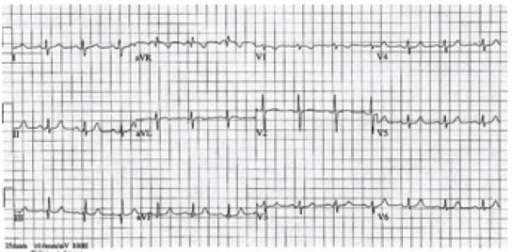 Post-nitroglycerine electrocardiogram with resolution of ST-elevation myocardial infarction.