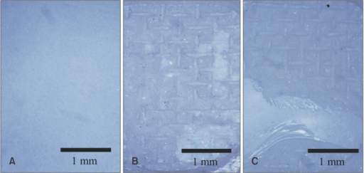 Stereoscopic micrographs of debonded surfaces (magnification ×16). A, Adhesive failure between zirconia and resin cement; B, adhesive failure between resin cement and bracket base; C, complex adhesive and cohesive failure.