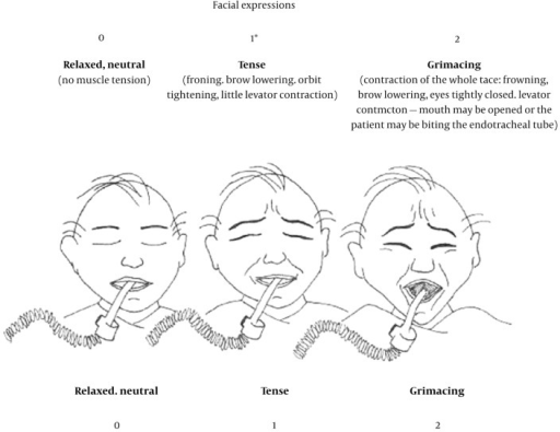 Facial Expression Tool for Pain Assessment, Drawings by Caroline Arbour, RN, B.Sc., PhD (student), McGill University
