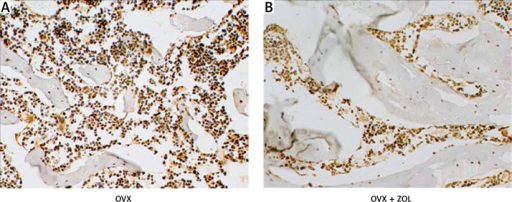 Effects of local zoledronic acid (ZOL) treatment on the advanced glycation end products (AGEs) expressed in the bone marrow of the proximal tibia (original magnification 40×)