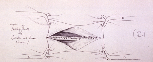 <p>Illustration showing the tendon sheath and subcutaneous tissues closed.</p>