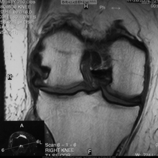 T2 Axial demonstrates hole in trochlear groove articular cartilage consistent with chronic patellar dislocation. Note severe effusion