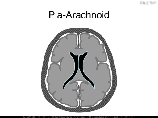 "Schematic diagram.  Leptomeningeal (pia and arachnoid) enhancement may be caused by infectious, chemical, or neoplastic ""meningitis"".  This enhancement is along the surface of the brain, along nerve roots, and may appear to fill the subarachnoid space and cisterns (e.g. suprasellar cistern)."
