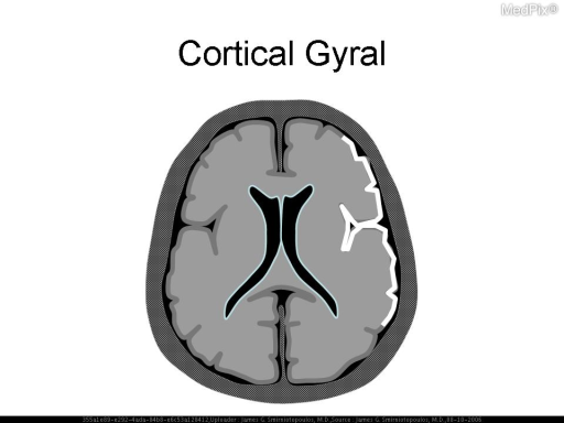 Schematic diagram. Cortical or gyral enhancement is most commonly from vascular causes (ischemia, infarction, migraine, seizures) or inflammation (e.g. viral encephalitis or meningoencephalitis).