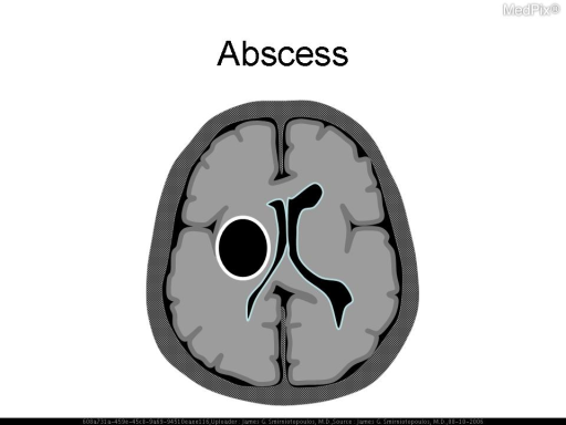 "Schematic diagram. After 2-4 weeks, infections cerebritis may organize into an abscess.  This involved angiogenesis with deposition of collagen to ""wall off"" the central liquefaction necrosis of brain; and, the inflammatory pus.  An organized abscess has a thin (<10mm), convex, relative uniform rim - that may be thinner along the white matter side."
