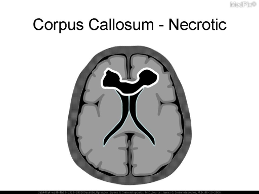 Schematic diagram - corpus callosum enhancement.  Tumefactive lesion in the corpus callosum, with thick and irregular ring enhancement, may be high-grade astrocytoma (GBM) or primary CNS lymphoma.