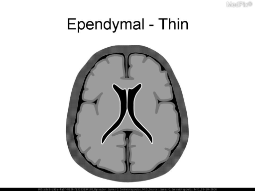 Schematic diagram. Thin ependymal enhancement may result from infections and neoplastic spread into the ventricle.  CMV (cytomegalovirus) typically causes thin enhancement of the ventricular ependymal lining.