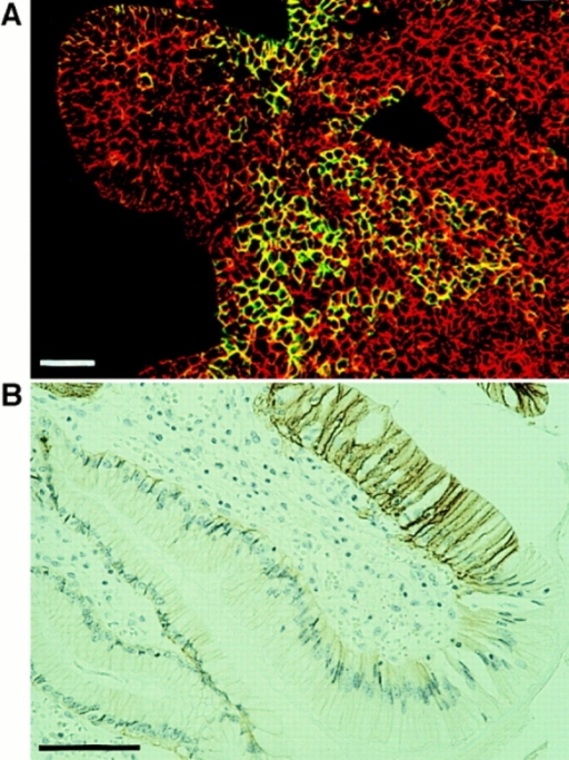 Examples of Ep-CAM expression by some cells within  the E-cadherin–positive cell population. (A) Heterogeneous expression of Ep-CAM in a basal cell carcinoma, as detected by immunofluorescent staining with mAb 323/A3 to Ep-CAM (green  fluorescence); the red fluorescence indicates the expression of  E-cadherin (mAb HECD-1). (B) The de novo expression of Ep-CAM in gastric mucosa in relation to the development of intestinal metaplasia; immunohistochemical staining with mAb 323/A3.  Note the bordering Ep-CAM–positive and –negative cells. Bars,  30 μM.