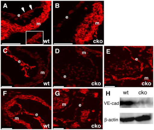 Cadherin/catenin expression in endothelial-restricted N-cadherin CKO embryos. Immunofluorescence was performed on E9.5 embryos for N-cadherin (A and B), VE-cadherin (C and D), PECAM (E), and p120ctn (F and G). In addition to its diffuse cell surface localization, N-cadherin is also observed at cell–cell contacts (arrows) between endocardial cells (A, inset). Western analysis of VE-cadherin in yolk sacs from wild-type (wt) and mutant (cko) embryos (H). m, myocardium; e, endocardium. Bars, 50 μm.