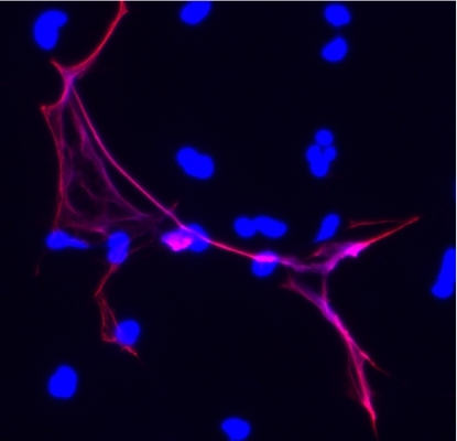 A neutrophil extracellular trap (red) is ready to snare passing microbes.
