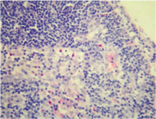 Sham-operated group 28 days; hyperplasia of sinus cell and inflammatory cell infiltration in lymph node; HE × 200.