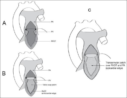 Pulmonary Valve Replacement in Adult Congenital Cardiac
