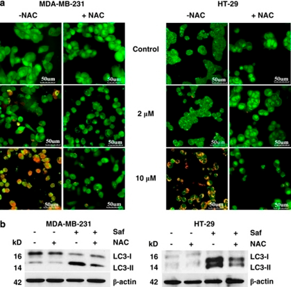 ROS trigger autophagy induction in MDA-MB-231 and HT-29 cells. (a) Detection of AVO in safingol-treated cells in the presence of NAC. Cells were treated with safingol±10 m NAC for 24 h before stained with 1 μg/ml acridine orange for 15 min. Cells were examined by fluorescence microscopy. Representative images of cells from three independent experiments were shown. Bar=50 μm. (b) Downregulation of LC3-II in cells in the presence of NAC. Cells were treated with safingol±10 m NAC for 48 h. Protein lysates were assayed by western blotting and β-actin was used as the loading control. All blots shown are representative of three independent experiments