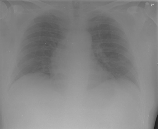 PA and lateral chest x-XXXX dated XXXX, XXXX at XXXX p.m..