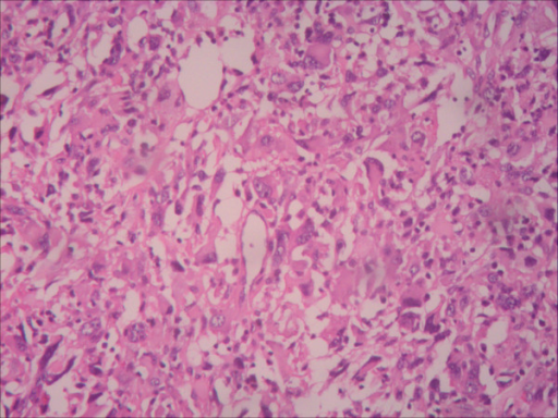 Photomicrograph of resected specimen. Histopathological examination of the specimen shows that the tumor is an undifferentiated pleomorphic sarcoma (hematoxylin and eosin stain; original magnification, ×100).