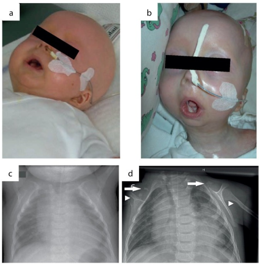 Phenotypic changes in the course of disease progression at age of 4 months (a) and age of 11 months (b). Chest x-rays were performed at age of 4 (c) and 11 months (d). Normal skeletal findings at age of 4 months are displayed. Missing of both claviculae at age of 11 months, residual bone fragments are denoted by arrows. Deformation and narrowing of both humeri at age of 11 months are marked by arrowheads.