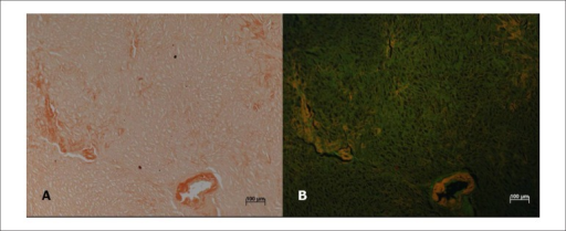 (A) Histological section of the myocardium stained with Congo red, showing amyloiddeposits in small vessels and the interstitium. (B) Same area observed underfluorescence microscopy where the amyloid deposition is shown. Objectivemagnification: 10×.