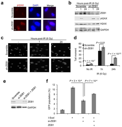 ZEB1 regulates DNA damage repair(a) γH2AX and DAPI staining of SUM159-P2 cells transducedwith ZEB1 shRNA, 24 hr after 6 Gy IR. Scale bar: 10 μm.(b) Immunoblotting of ZEB1, γH2AX, H2AX and GAPDH inSUM159-P2 cells transduced with ZEB1 shRNA, at the indicated time points after 6Gy IR.(c, d) Images (c) and data quantification(d) of comet assays of SUM159-P2 cells transduced with ZEB1shRNA, at the indicated time points after 6 Gy IR. n =62 cells per group. Scale bar in (c): 50 μm.(e) Immunoblotting of ZEB1 and GAPDH in U2OS_DR-GFP cellstransfected with ZEB1 siRNA alone or in combination with ZEB1.(f) HR repair assays of U2OS_DR-GFP cells transfected with ZEB1siRNA alone or in combination with ZEB1. n = 3 wellsper group.Data in d and f are the mean of biological replicatesfrom a representative experiment, and error bars indicate s.e.m. Statisticalsignificance was determined by a two-tailed, unpaired Student'st-test. The experiments were repeated 3 times. The sourcedata can be found in Supplementary Table 3. Uncropped images of blots are shown in Supplementary Figure7.