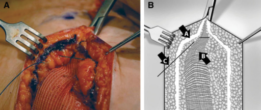 Intraoperative (A) and illustrative (B) images depict incorporation of the SBS at closure with a triangulation suture. Arrow A indicates superficial fascial system; arrow B, SBS implant; arrow C, skin edge.