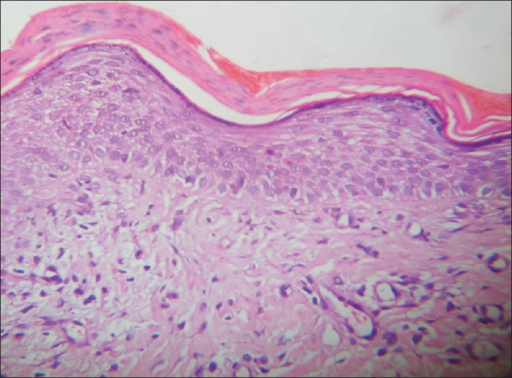 The epidermis shows parakeratosis with occasional dyskeratotic cells with papillary edema and superficial perivascular lymphocytic infiltrate in the dermis (H and E, ×40)