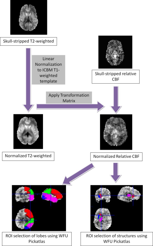 Diagram of the ASL analysis workflow.T2 images were skull-stripped and normalized to the ICBM T1-weighted template. A transformation matrix was applied to skull-stripped rCBF images with SPM8, to bring them into the same template. ROIs were selected automatically in the lobes and in deep brain structures using the Wake Forest University (WFU) PickAtlas.