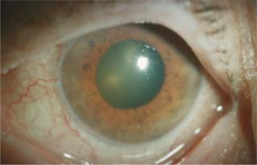 Acute angle closure glaucoma secondary to choroidal hemorrhage.Note: © Springer and Ophthalmologe. 2005;102(11):1090–1096, Akutes Winkelblockglaukom nach massiver intraokularer Blutung bei exsudativer altersbedingter Makuladegeneration unter gerinnungshemmender Therapie [Anticoagulative therapy in patients with exudative age-related macular degeneration: acute angle closure glaucoma after massive intraocular hemorrhage], Schlote T, Freudenthaler N, Gelisken F, Figure 6, with kind permission from Springer Science and Business Media.55
