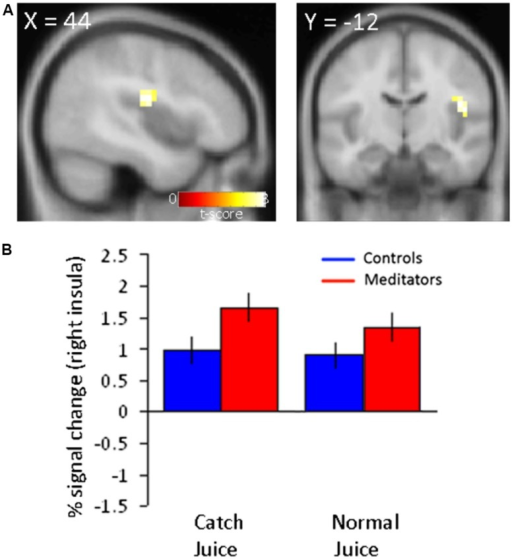 Increased neural activity in right posterior insula to juice delivery in meditators.(A) Main effect of juice delivery collapsed across modality (normal/catch) in (Meditators > Controls) resulted in activity in the right insula (44 -12 20; z = 3.35; p < 0.001, unc.). (B) Parameter estimates extracted from the right posterior insula region are displayed for both groups and separated into trial types corresponding to averaged responses from run 3 and 4. Error bars indicate SE.