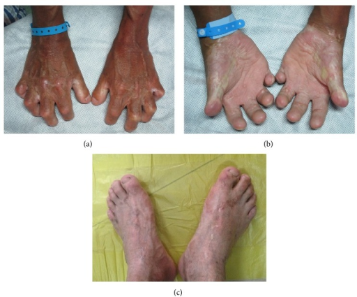 Hands and feet images. (a) Opisthenar; (b) palm; (c) feet. Clinical examination reveals fingers, especially the first and second phalange, were shorter and cannot full straighten. His palms and soles were hyperkeratosis. Fingernails and toenails were dystrophy.