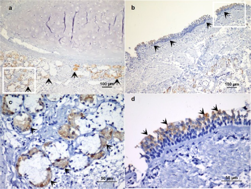 Localization of vitronectin in human bronchial epithelium.Indirect immunoperoxidase staining of paraffin sections from cadaver tissue (healthy control). a) Vitronectin expression in submucosal glands of a mainstem bronchus (arrows), magnification x100. b). Presence of vitronectin in the bronchial surface epithelium (arrows), magnification x100. c-d). Enlarged sections from panels a and b, magnification x400.
