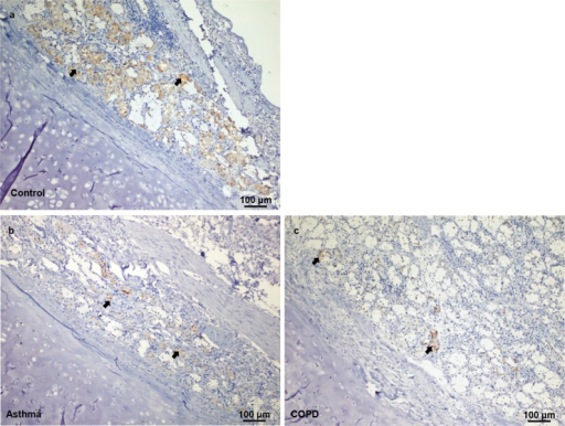 Vitronectin expression in healthy, asthmatic, and COPD individuals.Immunohistochemical staining shows vitronectin expression in airway tissues (arrows) from the control (a), asthmatic (b) and COPD (c) individuals.