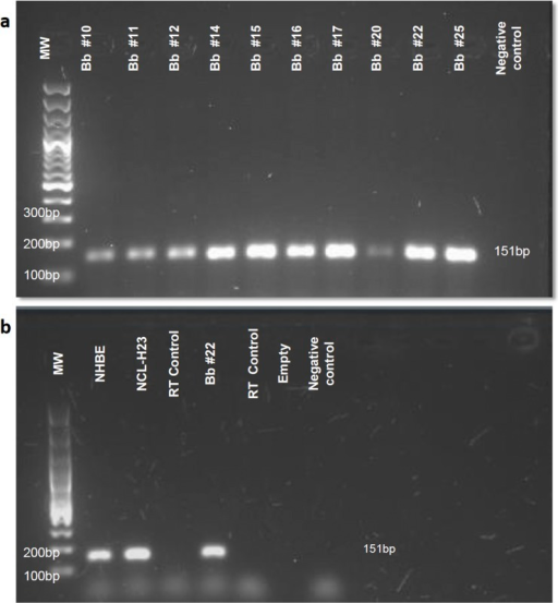"(a) Agarose gel electrophoresis of the amplification product for vitronectin cDNA from bronchial brushings.The amplified fragment corresponds to a band size of 151bp. MW, molecular weight marker, Bb, bronchial brushing, and NC, negative control or ""non-template control"" of qPCR. The number accompanying bronchial brushings corresponds to the number assigned to different patients. (b) Agarose gel electrophoresis of the amplification product for vitronectin cDNA from cultured cells. Molecular weight marker (MW), normal human bronchial epithelial cells (NHBE), cells from adenocarcinoma of epithelial origin (NCL-H23), bronchial brushing (Bb), extraction and retro-transcription control (RT control) or ""no reverse-transcriptase control"", and negative control (NC)."