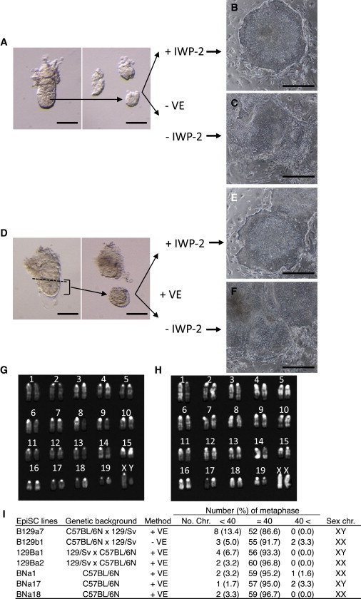 Establishment of EpiSC Lines by the IWP-2 Method(A) E5.5 epiblasts without VE (−VE) were cultured with or without IWP-2.(B and C) Epiblast outgrowth 5 days after plating of epiblasts without VE and with IWP-2 (B), and without VE and IWP-2 (C).(D) Epiblasts with VE (+VE) of E5.5 embryos were cultured with or without IWP-2.(E and F) Epiblast outgrowth 5 days after plating of epiblasts with VE and IWP-2 (E), and with VE and without IWP-2 (F).(G and H) Representative karyotypes are shown for male (G) and female (H) EpiSC lines.(I) List of the EpiSC lines used in this study, including their genetic background, the derivation method used, chromosome numbers, and compositions of sex chromosomes.Scale bars, 100 μm (A and B) and 0.5 mm (C–F). See also Figure S1.