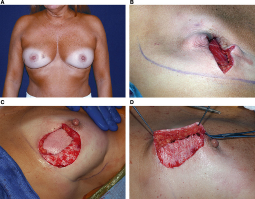 A, Preoperative view of a 42-year-old patient with carcinoma of the right breast. B, Intraoperative view after right areolar sparing mastectomy with a vertical incision. C, FlexHD sutured to the periphery of the mastectomy pocket. Adjustable implant placed in the prepectoral position beneath the ADM, and the medial edge of lateral flap de-epithelialized. D, Dermal flap advanced beneath the medial flap.