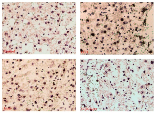 Liquiritigenin inhibited hepatocyte apoptosis in CCl4 treated rat livers. The apoptotic cells in rat liver sections were detected with a commercial TUNEL kit. The results showed increased apoptosis in rat liver exposed to CCl4 while liquiritigenin protected the liver cells from CCl4-induced apoptosis.