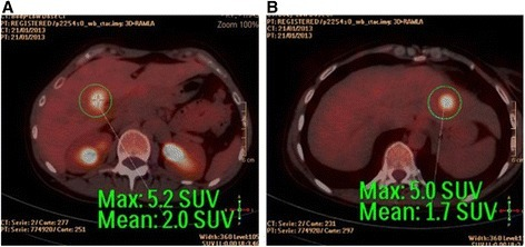 a-b PET-CT images locating the two liver metastases, the first in segment IV-B next to the right portal bifurcation and the other in segment II