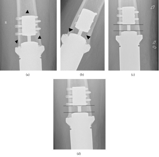 (a) and (b) Radiolucent line in the compress area after falling 1 y postop, (c) and (d) development of angulation and loss of distance between the anchor plug and the spindle can be observed after fracture (d) healing when compared to the prefracture X-ray (c). At 18 months stage 3 has not been reached (d).