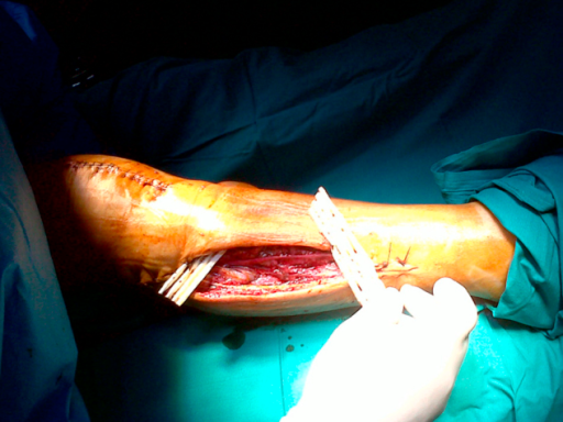 Care with the bandaging of the fasciotomy sites demonstrated the presence of necrosis of the muscles of the anterior and lateral compartments of the right leg. Consequently, progressive muscle debridement was performed.