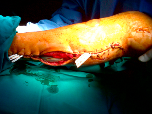 Suturing of the fasciotomy sites was performed progressively and no skin grafts were necessary.