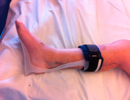 Anti-equinus splint prescribed because the patient was walking with a hanging foot.