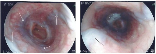 Upper gastrointestinal endoscopy performed after three months on oral anticoagulation. Arrows show medium varices occupying the circumference of the esophageal lumen. Fujinon EG250PE5, Japan. With the permission of the Cathedral Medical Center (CMC) in Yaoundé.