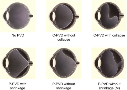 Classification of posterior vitreous detachments (PVDs) by slit-lamp biomicroscopy.Abbreviations: No PVD, no posterior vitreous detachment; C-PVD without collapse, complete posterior vitreous detachment without collapse; C-PVD with collapse, complete posterior vitreous detachment with collapse; P-PVD with shrinkage, partial posterior vitreous detachment with shrinkage of the posterior hyaloid membrane; P-PVD without shrinkage, partial posterior vitreous detachment without shrinkage of the posterior hyaloid membrane; P-PVD without shrinkage (M), P-PVD without shrinkage showing vitreous gel attachment to the macula through the premacular hole in the posterior hyaloid membrane.