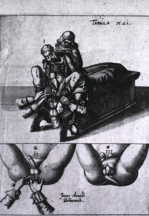 <p>Lithotomy procedures.</p>