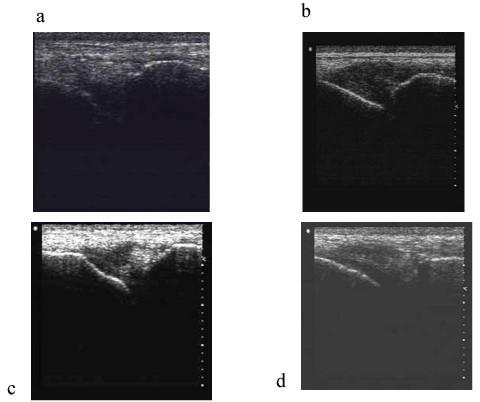Longitudinal ultrasonograms of the supraspinous ligamen | Open-i