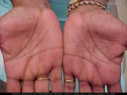 Generalized erythematous firm papules sparing the face and scalp. On palms and soles: reddish-brown flat round papules with collarette of scale. No lymphadenopathy. Left eye: conjunctival injected