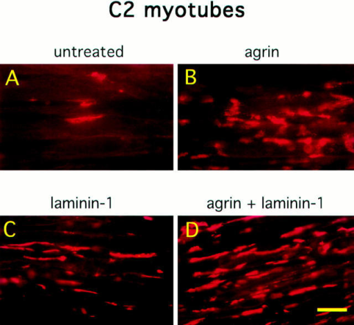 Laminin-1 induces AChR clustering and increases agrin-induced AChR clustering in an additive manner. C2 myotubes were  untreated (A), treated with 150 pM soluble neural agrin (B), 40 nM laminin-1 (C), or treated with both 150 pM neural agrin and 40 nM  laminin-1 (D). Cultures were then stained with rhodamine-conjugated α-bungarotoxin. Neural agrin and laminin-1 induce the formation  of AChR clusters, while treatment with both further increases the number of AChR clusters. Bar, 25 μm.