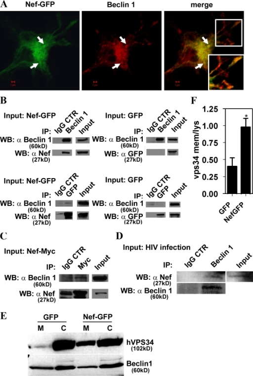 Nef is in protein complexes with autophagy regulator Beclin 1. (A) Macrophages were transfected with Nef-GFP and immunostained for Beclin 1. Arrows, perinuclear profiles exemplifying Nef and Beclin 1 colocalization. (inset) Peripheral colocalization. (B) 293T cells were transfected with Nef-GFP or GFP alone for 48 h. Lysates were immunoprecipitated either with Beclin 1 antibody and immunoblotted with Nef antibody (top) or with GFP and immunoblotted for Beclin 1 (bottom). Specific protein levels in cell lysates (input) and immunoprecipitates with IgG controls are shown. (C) Coimmunoprecipitation of Beclin 1 with Nef-Myc. 293T cells were transfected with Nef-Myc for 48 h, then cells were lysed and immunoprecipitation was performed using monoclonal Myc antibody or IgG control. Western blots were probed with Beclin 1 or Nef antibodies. The blots shown represent one of four independent experiments. (D) U937 cells were infected for 48 h with VSV-G–pseudotyped HIV. Cells were lysed and immunoprecipitated with Beclin 1–specific antibody or control IgG. Western blots of immunoprecipitated material were probed with Nef antibody. (E and F) 293T cells were cotransfected with Nef-GFP or GFP and Flag-hVPS34 for 48 h. Cells were fractionated into membranes (M) and cytosol (C) and immunoblotted with anti-Flag and Beclin 1 antibodies. (E) Immunoblots. (F) Quantification (ratios of membrane-associated hVPS34 to cytosolic hVPS34. Data indicate means; error bars indicate ±SEM. *, P < 0.05 (n = 3).